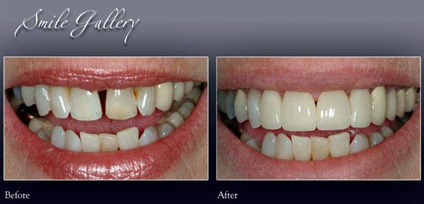 Smile 1 - Rochester Hills Family Dentistry