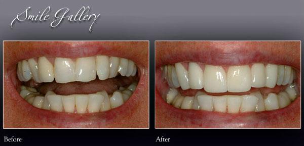 Smile 2 - Rochester Hills Family Dentistry